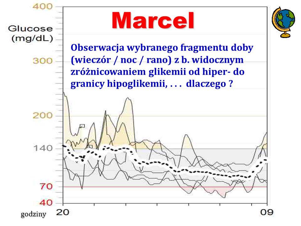 Obserwacja wybranego fragmentu doby (wieczór / noc / rano) z b. widocznym zróżnicowaniem glikemii od hiper- do granicy hipoglikemii,... dlaczego ? Mar