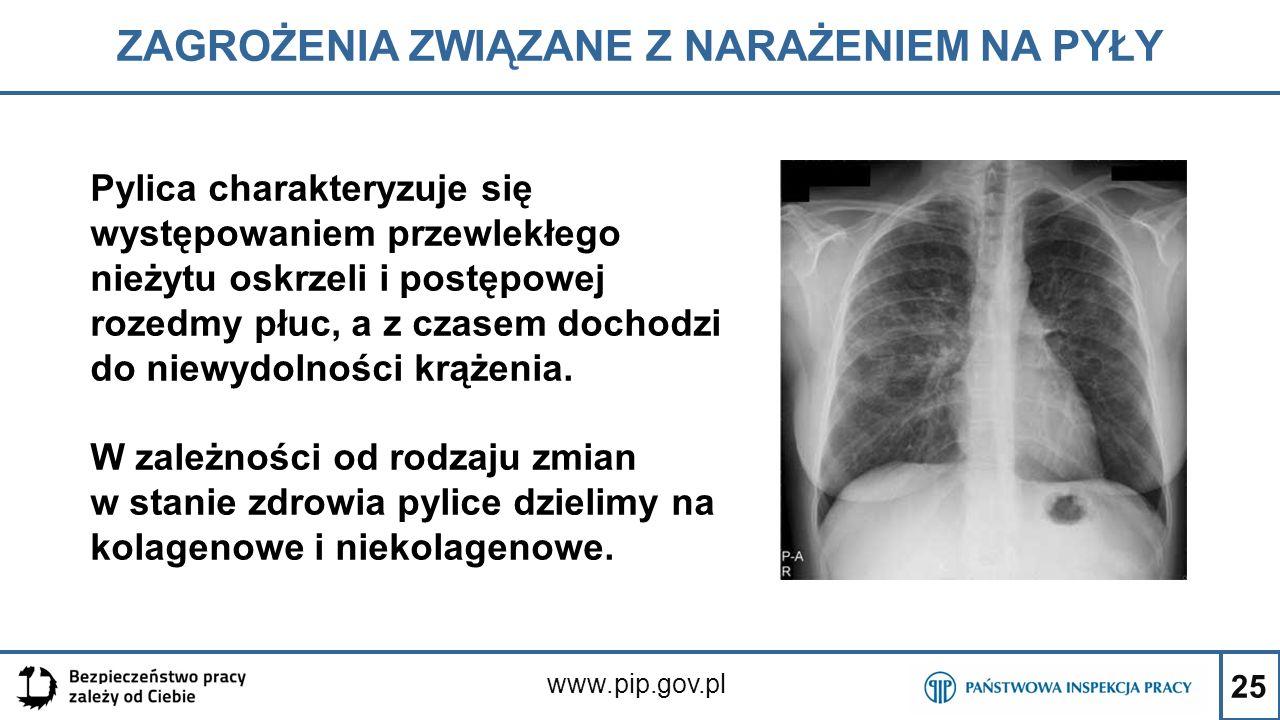 25 ZAGROŻENIA ZWIĄZANE Z NARAŻENIEM NA PYŁY www.pip.gov.pl Pylica charakteryzuje się występowaniem przewlekłego nieżytu oskrzeli i postępowej rozedmy