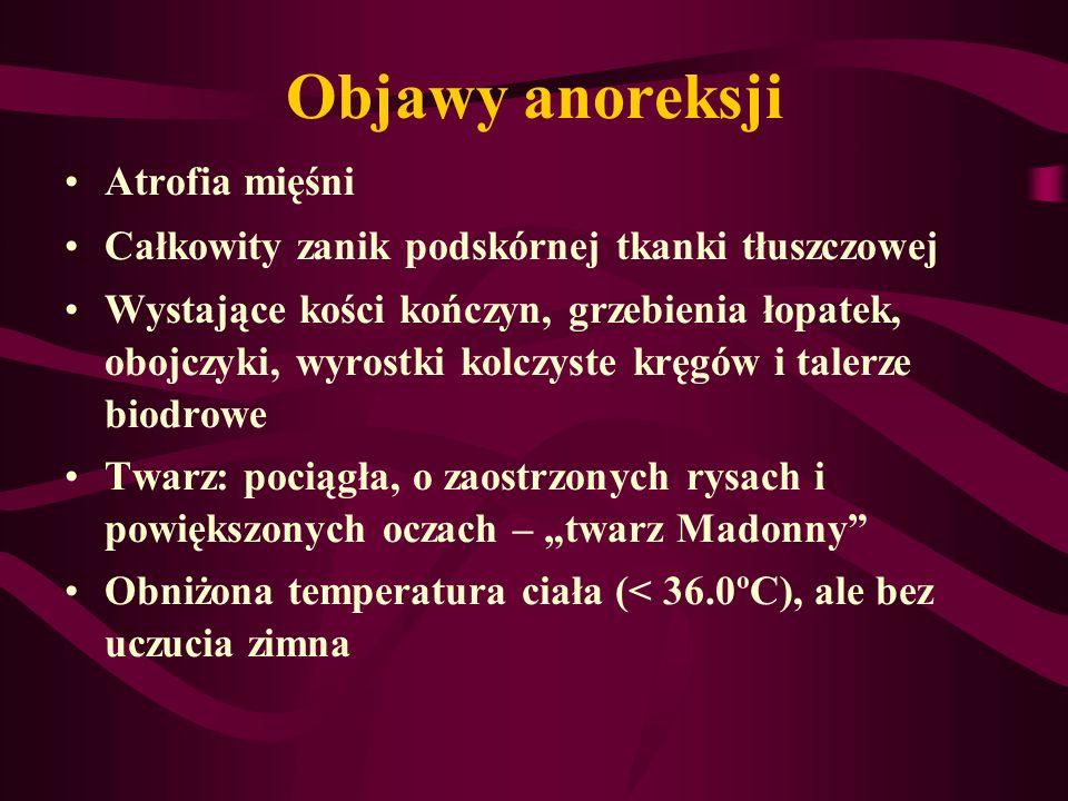 Objawy anoreksji Atrofia mięśni Całkowity zanik podskórnej tkanki tłuszczowej Wystające kości kończyn, grzebienia łopatek, obojczyki, wyrostki kolczys
