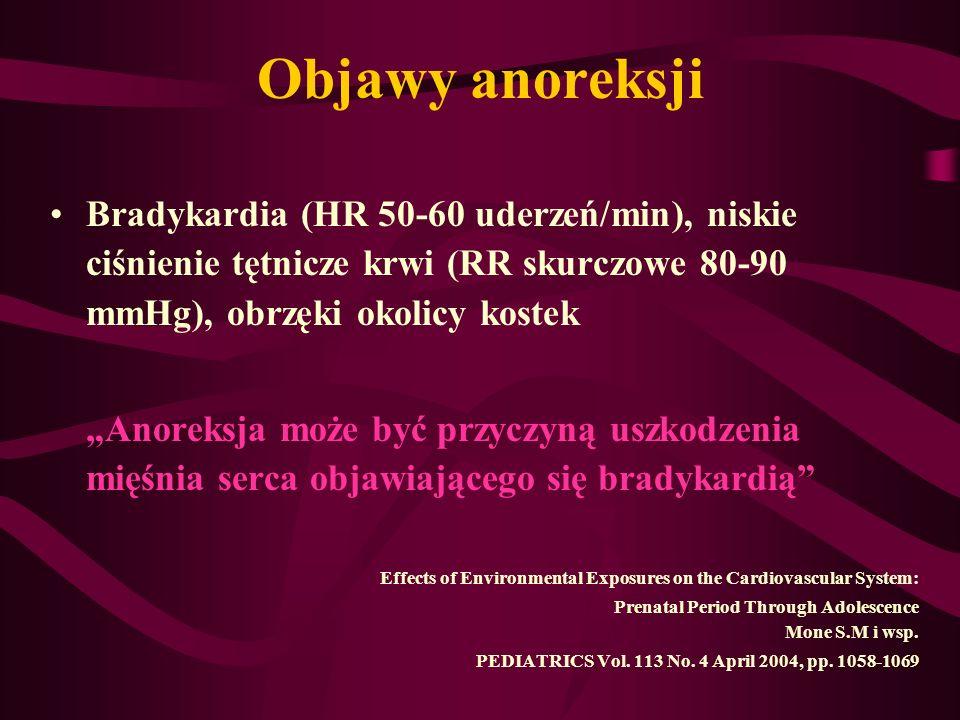 """Objawy anoreksji Bradykardia (HR 50-60 uderzeń/min), niskie ciśnienie tętnicze krwi (RR skurczowe 80-90 mmHg), obrzęki okolicy kostek """"Anoreksja może"""