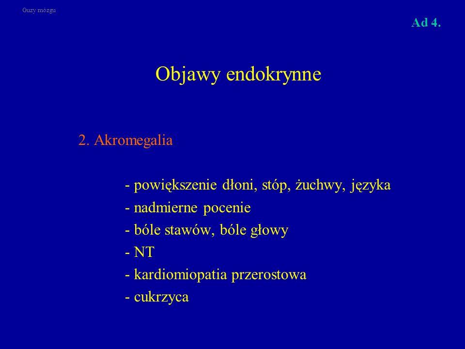 Objawy endokrynne 2. Akromegalia - powiększenie dłoni, stóp, żuchwy, języka - nadmierne pocenie - bóle stawów, bóle głowy - NT - kardiomiopatia przero