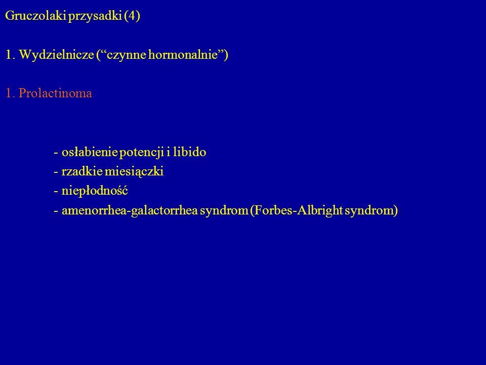 """Gruczolaki przysadki (4) 1. Wydzielnicze (""""czynne hormonalnie"""") 1. Prolactinoma - osłabienie potencji i libido - rzadkie miesiączki - niepłodność - am"""