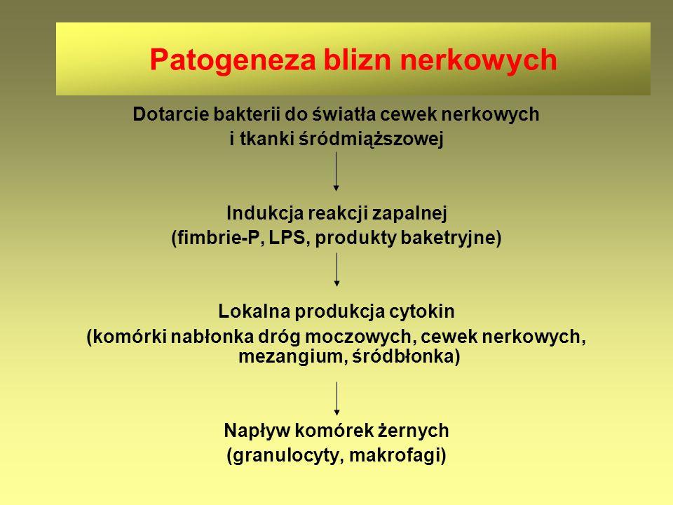 Patogeneza blizn nerkowych Dotarcie bakterii do światła cewek nerkowych i tkanki śródmiąższowej Indukcja reakcji zapalnej (fimbrie-P, LPS, produkty ba