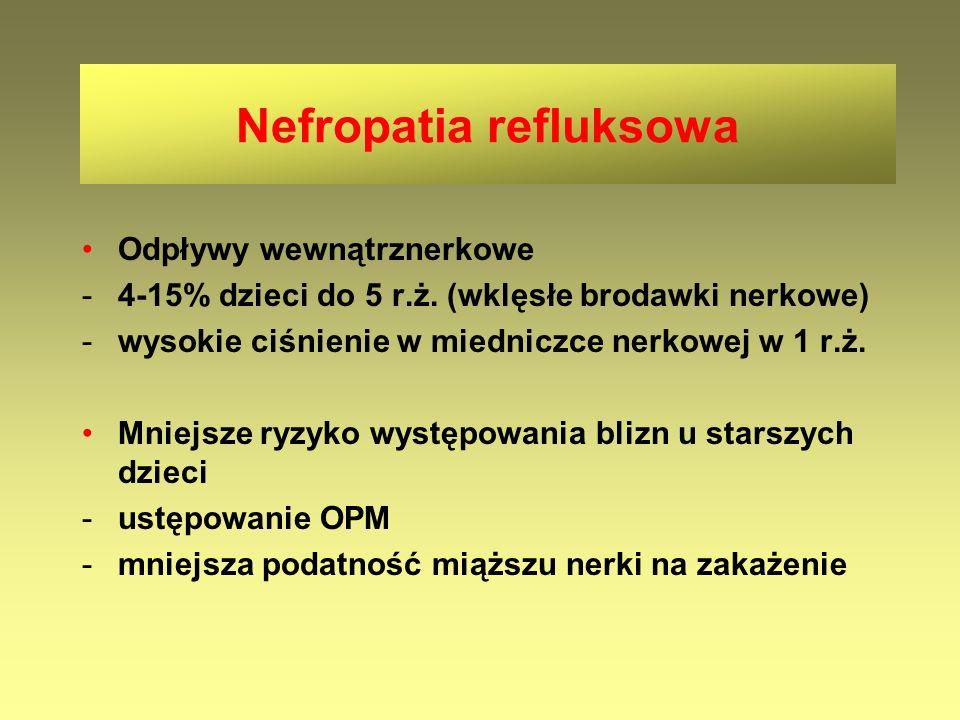 Nefropatia refluksowa Odpływy wewnątrznerkowe -4-15% dzieci do 5 r.ż. (wklęsłe brodawki nerkowe) -wysokie ciśnienie w miedniczce nerkowej w 1 r.ż. Mni