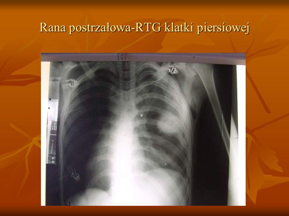 Rana postrzałowa-RTG klatki piersiowej