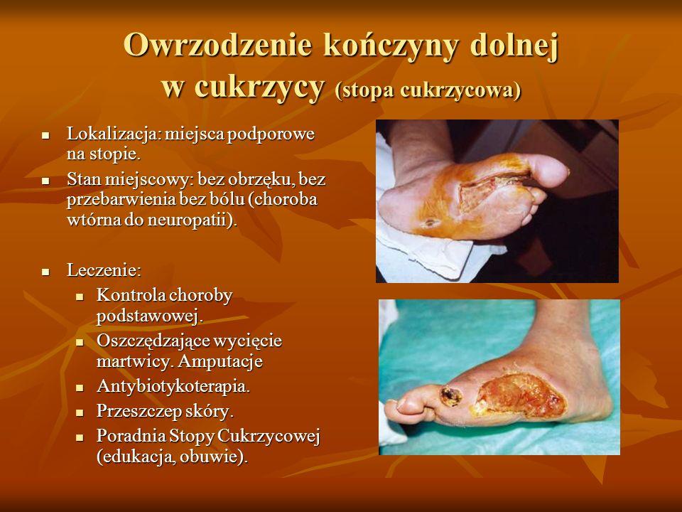 Owrzodzenie kończyny dolnej w cukrzycy (stopa cukrzycowa) Lokalizacja: miejsca podporowe na stopie. Lokalizacja: miejsca podporowe na stopie. Stan mie