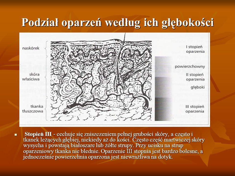 Podział oparzeń według ich głębokości Stopień III - cechuje się zniszczeniem pełnej grubości skóry, a często i tkanek leżących głębiej, niekiedy aż do