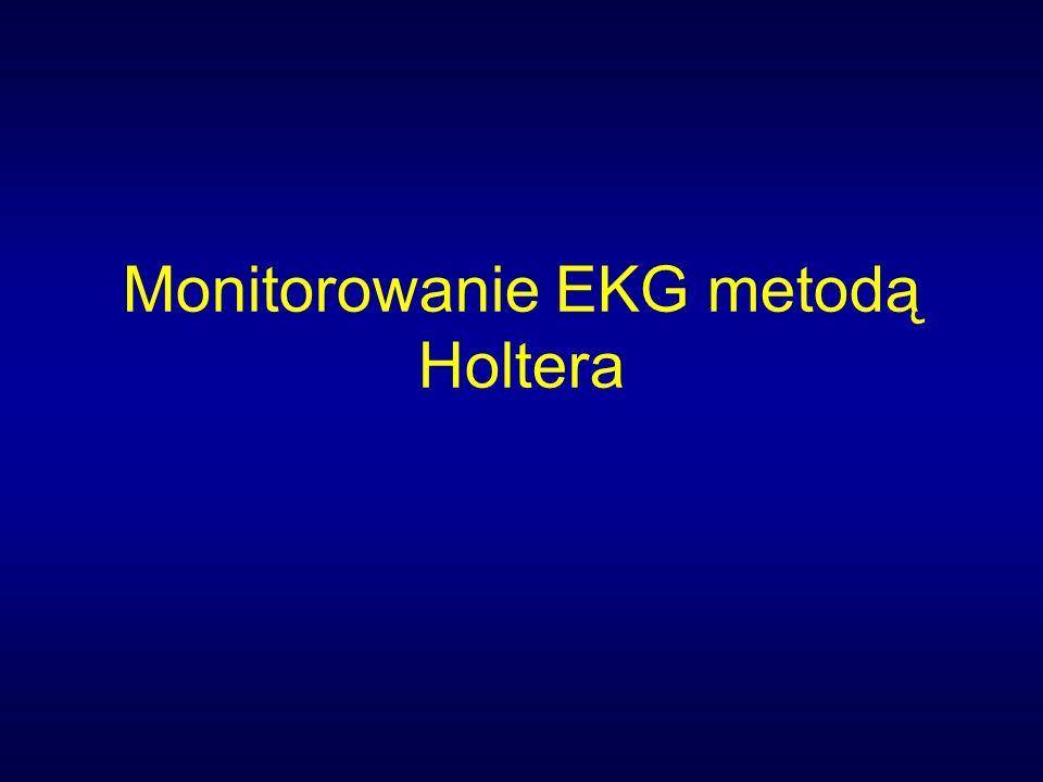 Wskazania do AECG dla monitorowania niedokrwienia Klasa 1 Żadne Klasa IIa 1.