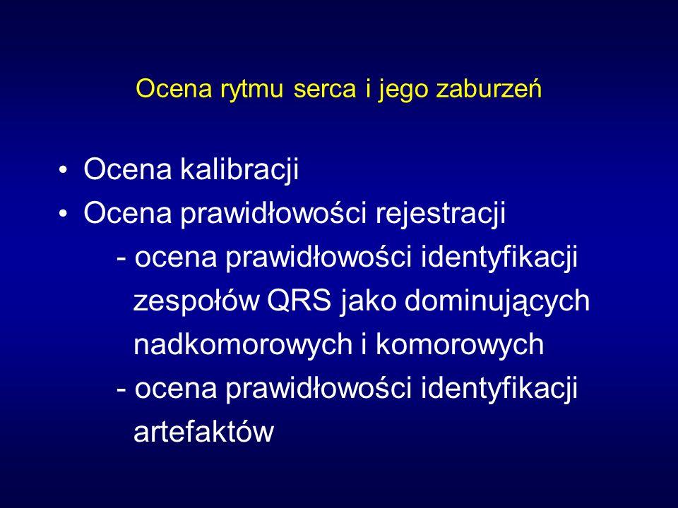 Ocena rytmu serca i jego zaburzeń Ocena kalibracji Ocena prawidłowości rejestracji - ocena prawidłowości identyfikacji zespołów QRS jako dominujących