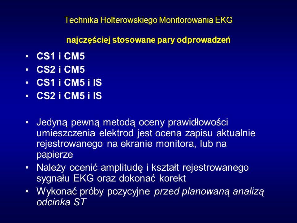 Parametry oceniane w zapisie metoda Holtera 1.