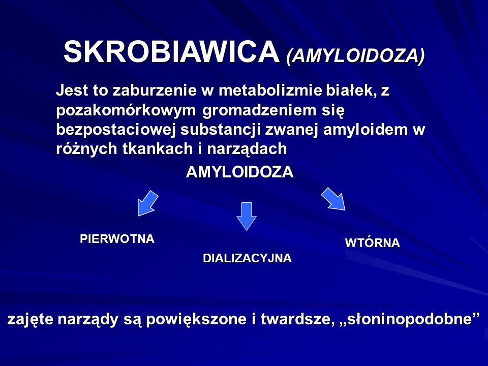 """SKROBIAWICA (AMYLOIDOZA) Jest to zaburzenie w metabolizmie białek, z pozakomórkowym gromadzeniem się bezpostaciowej substancji zwanej amyloidem w różnych tkankach i narządach AMYLOIDOZA WTÓRNA PIERWOTNA DIALIZACYJNA zajęte narządy są powiększone i twardsze, """"słoninopodobne"""