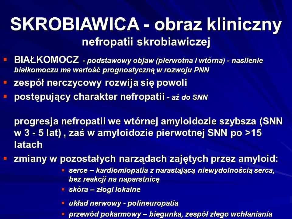 SKROBIAWICA - obraz kliniczny nefropatii skrobiawiczej  BIAŁKOMOCZ - podstawowy objaw (pierwotna i wtórna) - nasilenie białkomoczu ma wartość prognostyczną w rozwoju PNN  zespół nerczycowy rozwija się powoli  postępujący charakter nefropatii - aż do SNN progresja nefropatii we wtórnej amyloidozie szybsza (SNN w 3 - 5 lat), zaś w amyloidozie pierwotnej SNN po >15 latach  zmiany w pozostałych narządach zajętych przez amyloid:  serce – kardiomiopatia z narastającą niewydolnością serca, bez reakcji na naparstnicę  skóra – złogi lokalne  układ nerwowy - polineuropatia  przewód pokarmowy – biegunka, zespół złego wchłaniania