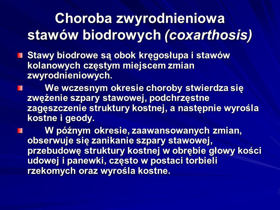 Choroba zwyrodnieniowa stawów biodrowych (coxarthosis) Stawy biodrowe są obok kręgosłupa i stawów kolanowych częstym miejscem zmian zwyrodnieniowych.
