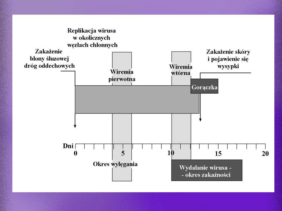 VZV Ospa wietrzna (Varicella) Półpasiec (Zoster) przenoszenie: droga kropelkowa lub kontaktowa (najbardziej zakaźny herpeswirus) wirus migruje z dróg