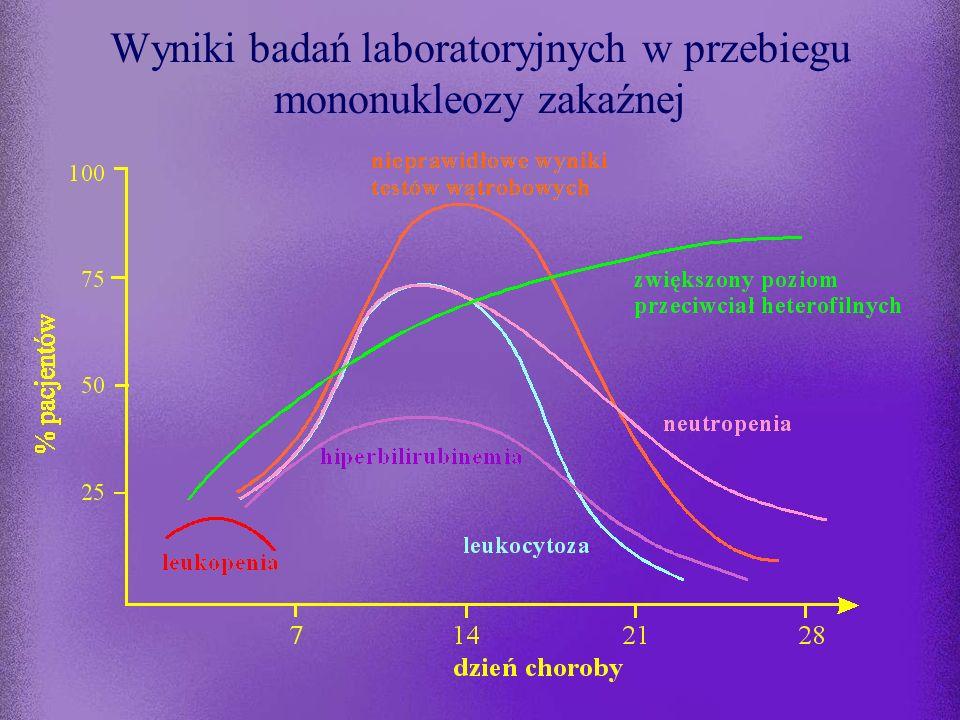 Mononukleoza zakaźna okres prodromalny trwa 7-10 dni częściej choroba zaczyna się ostro: bólem gardła i gorączką powyżej 38  C typowe objawy zespołu