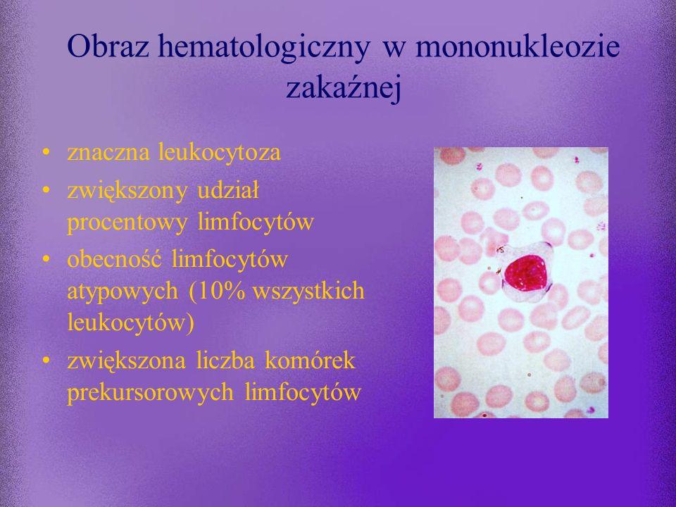 Wyniki badań laboratoryjnych w przebiegu mononukleozy zakaźnej