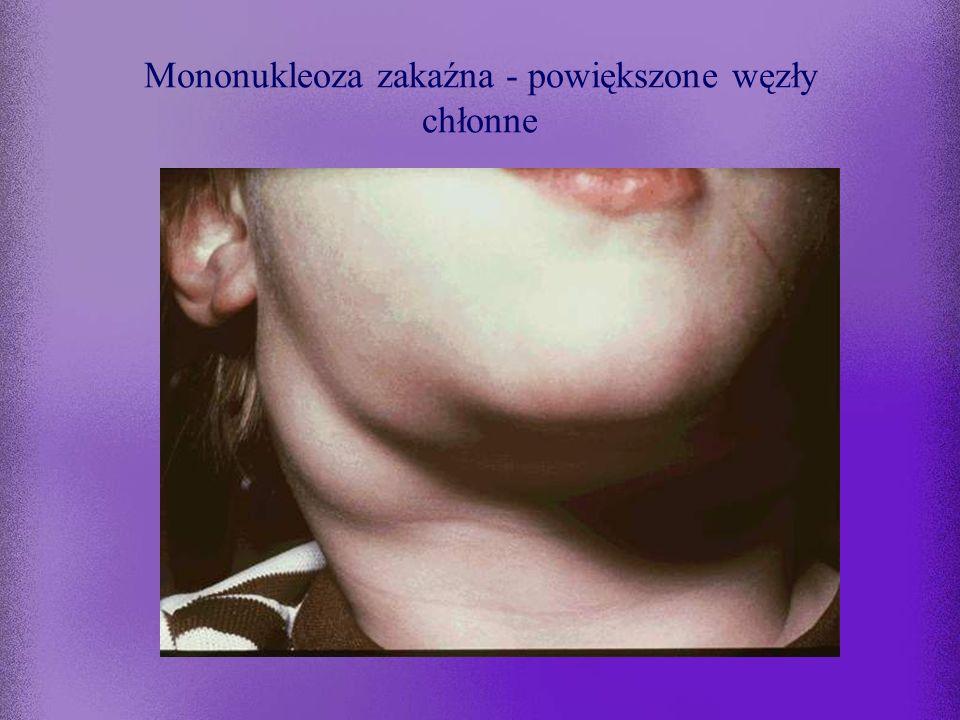 Mononukleoza zakaźna - leczenie Wyłącznie objawowe: –dieta lekkostrawna –witaminy –środki przeciwgorączkowe i odkażające miejscowo gardło –glikokortyk