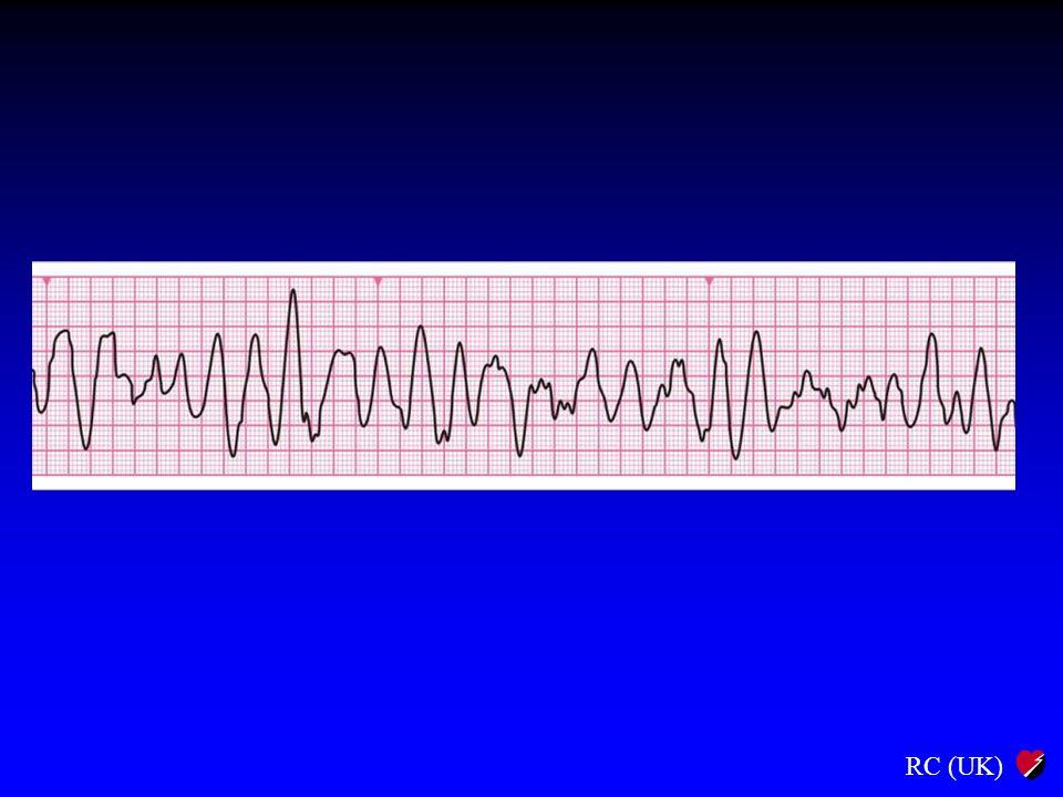 NZK Uderzenie przedsercowe, jeśli wskazane BLS, jeśli wskazane Podłącz defibrylator / kardiomonitor Ocena rytmu +/- Sprawdź tętno VF/VTNie-VF/VT