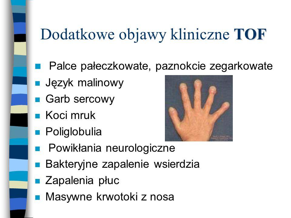 TOF Dodatkowe objawy kliniczne TOF n Palce pałeczkowate, paznokcie zegarkowate n Język malinowy n Garb sercowy n Koci mruk n Poliglobulia n Powikłania