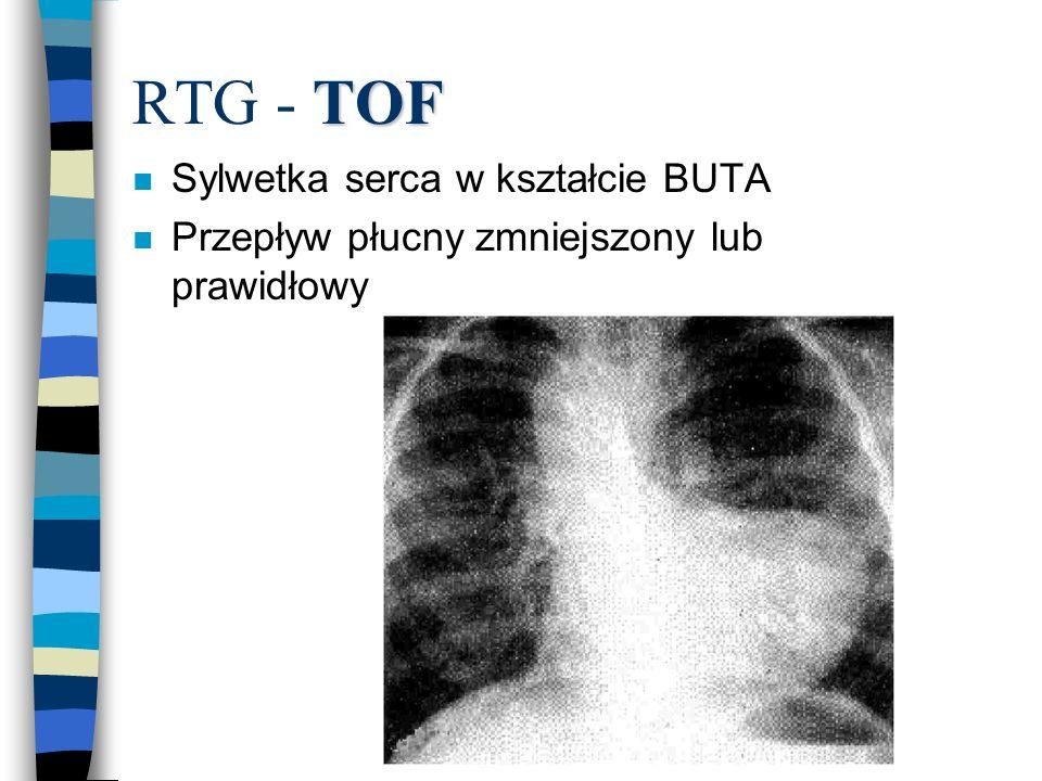 TOF RTG - TOF n Sylwetka serca w kształcie BUTA n Przepływ płucny zmniejszony lub prawidłowy