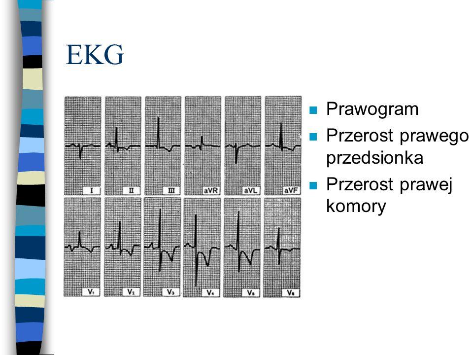 EKG n Prawogram n Przerost prawego przedsionka n Przerost prawej komory