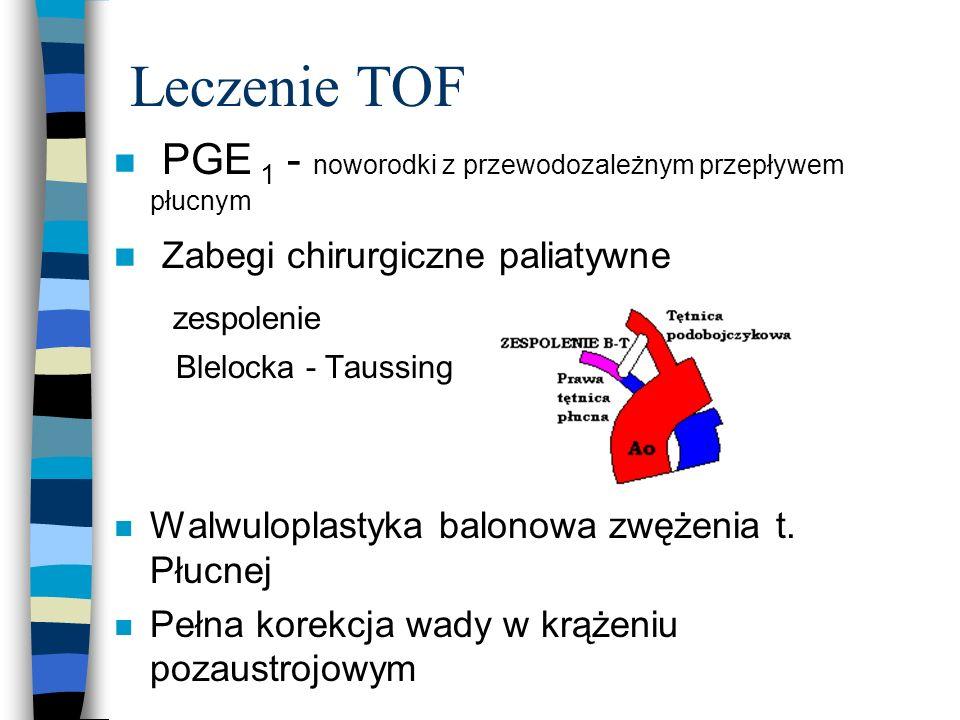 Leczenie TOF n PGE 1 - noworodki z przewodozależnym przepływem płucnym n Zabegi chirurgiczne paliatywne zespolenie Blelocka - Taussing n Walwuloplasty