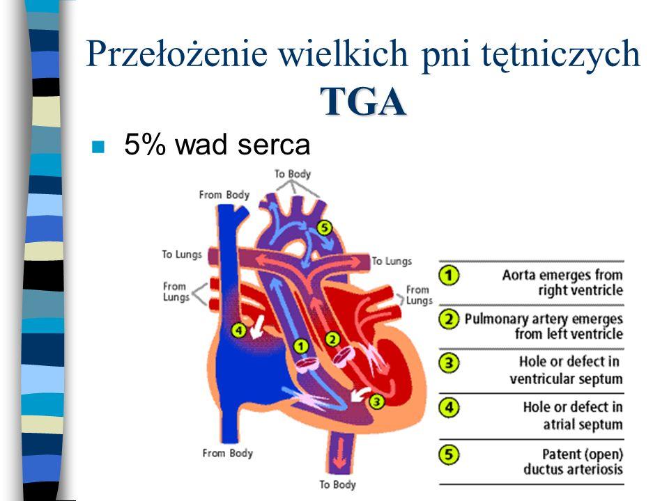 TGA Przełożenie wielkich pni tętniczych TGA n 5% wad serca