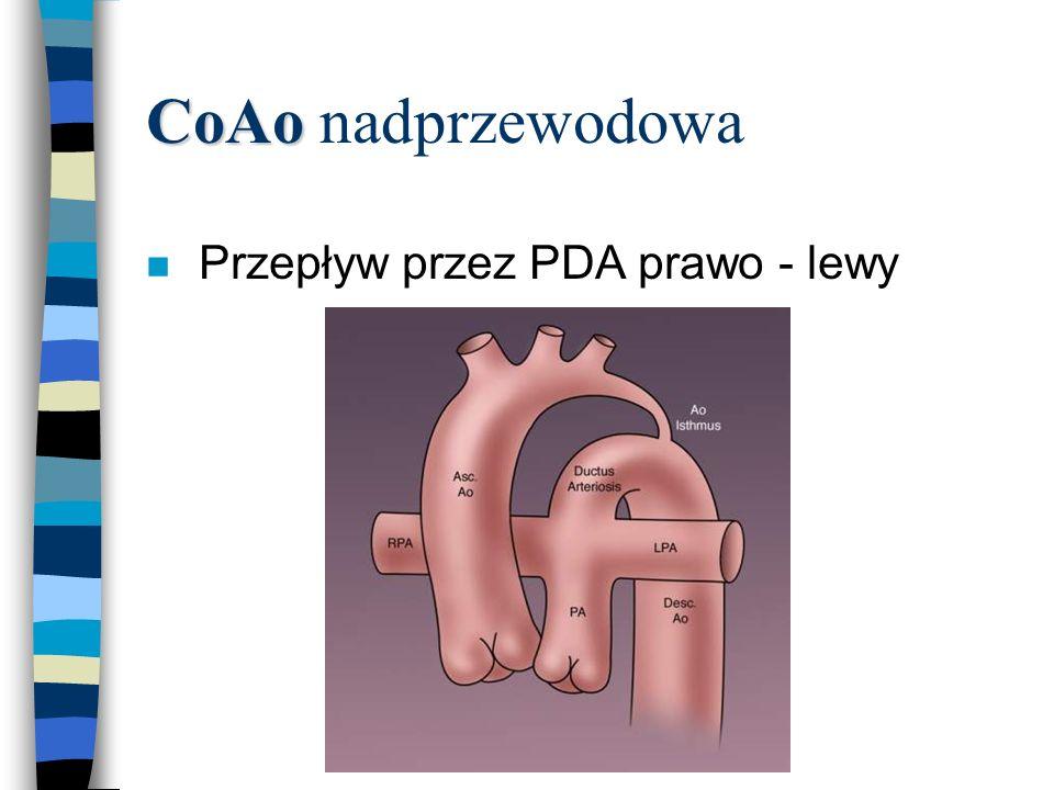 CoAo CoAo nadprzewodowa n Przepływ przez PDA prawo - lewy