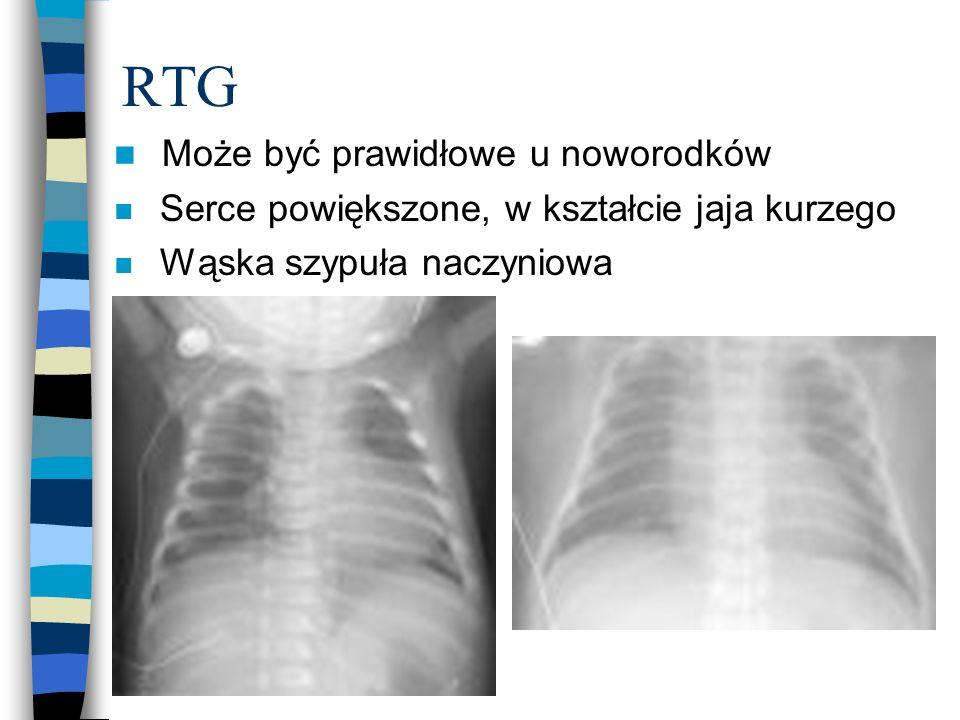 RTG n Może być prawidłowe u noworodków n Serce powiększone, w kształcie jaja kurzego n Wąska szypuła naczyniowa