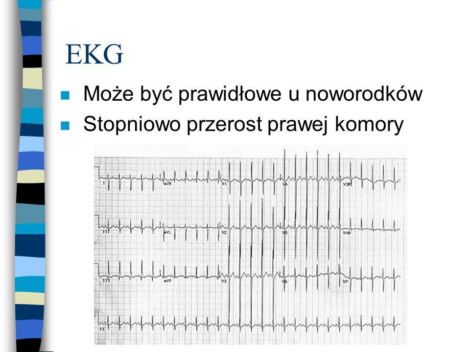 EKG n Może być prawidłowe u noworodków n Stopniowo przerost prawej komory