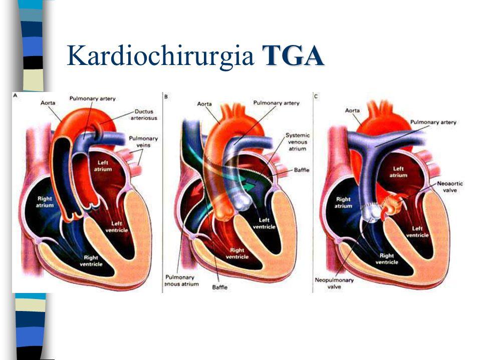 TGA Kardiochirurgia TGA