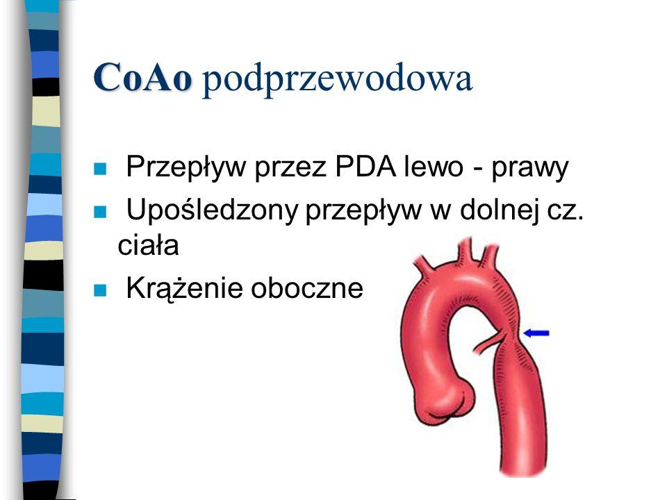 CoAo CoAo podprzewodowa n Przepływ przez PDA lewo - prawy n Upośledzony przepływ w dolnej cz. ciała n Krążenie oboczne