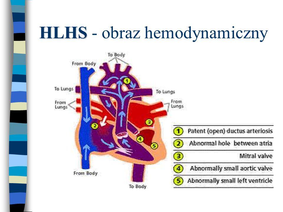 HLHS HLHS - obraz hemodynamiczny