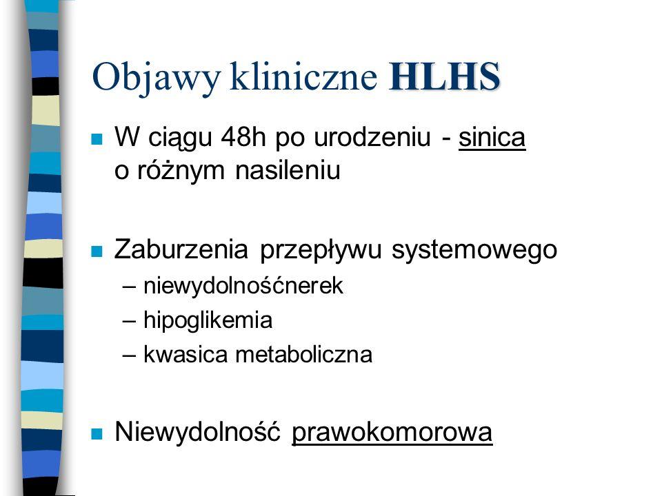 HLHS Objawy kliniczne HLHS n W ciągu 48h po urodzeniu - sinica o różnym nasileniu n Zaburzenia przepływu systemowego –niewydolnośćnerek –hipoglikemia