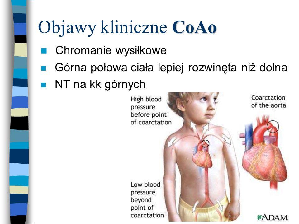 CoAo Objawy kliniczne CoAo n Chromanie wysiłkowe n Górna połowa ciała lepiej rozwinęta niż dolna n NT na kk górnych