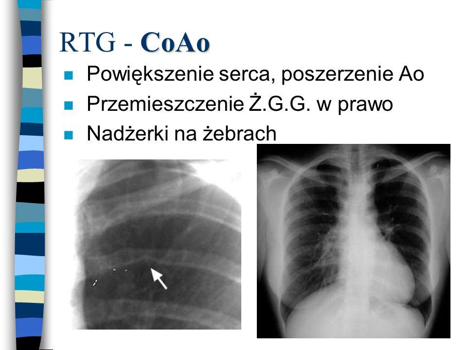 CoAo RTG - CoAo n Powiększenie serca, poszerzenie Ao n Przemieszczenie Ż.G.G. w prawo n Nadżerki na żebrach