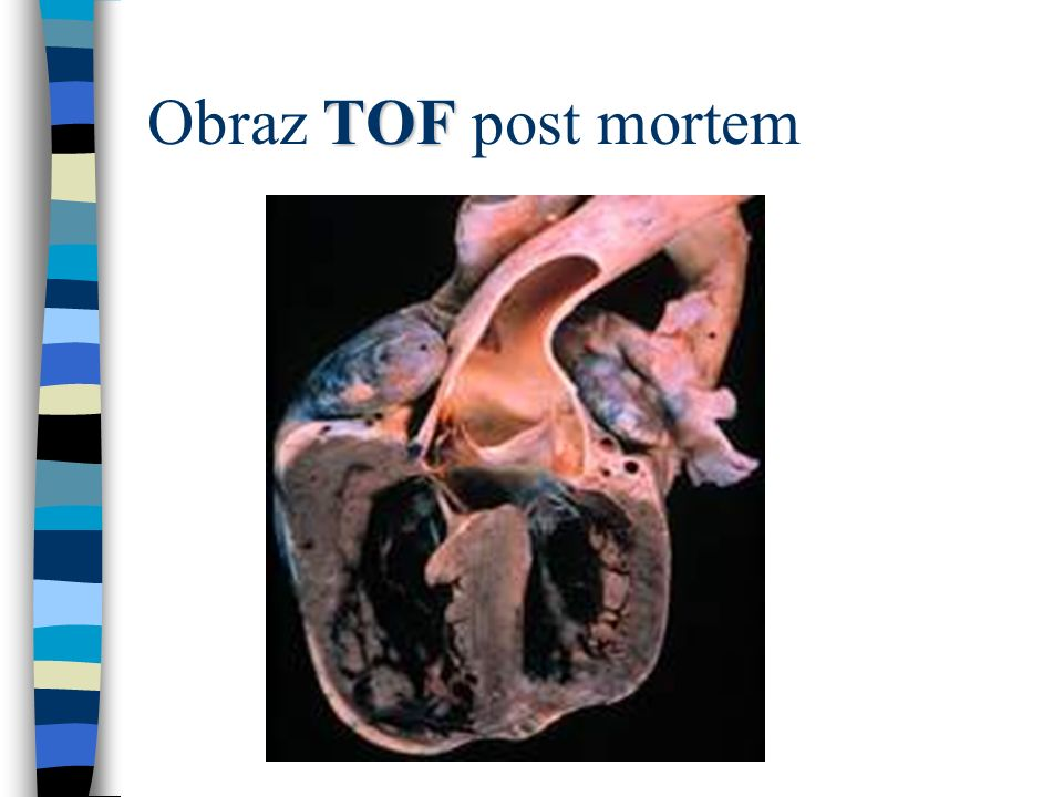 TOF Obraz TOF post mortem