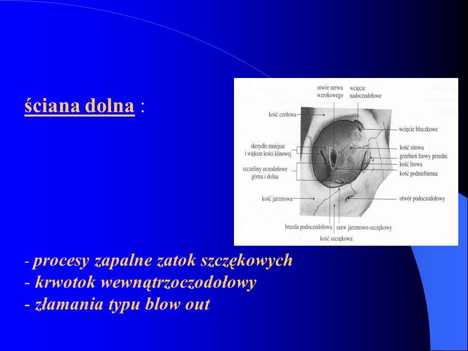uszkodzenie nerwu w odcinku do skrzyżowania wzrokowego – ślepota 1 oka uszkodzenie wł.skrzyżownych (np.guz przysadki) niedowidzenie połowicze dwuskroniowe uszkodzenie wł.nieskrzyżowanch (tętniak,miażdzycz ż.ś.s.