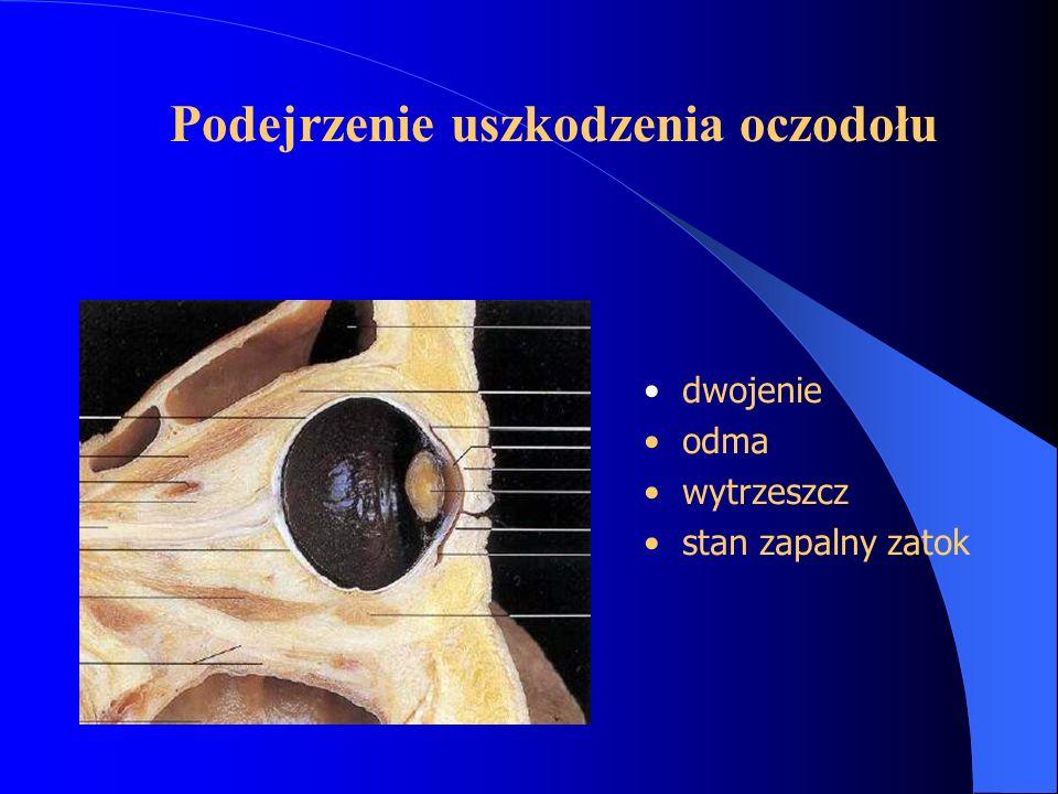 SZCZELINA OCZODOŁOWA GÓRNA nerwy ruchowe - III, IV,VI nerwy czuciowe - V1 włókna współczulne włókna przywspółczulne - III żyła oczna górna połączona z dołem środkowym czaszki