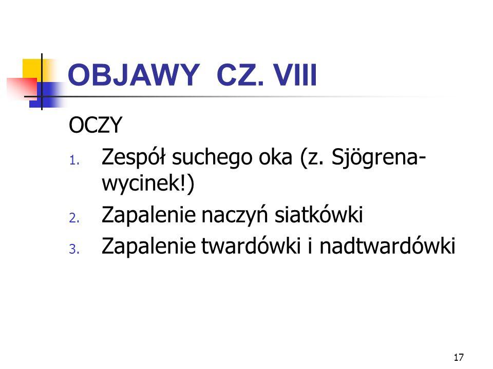 17 OBJAWY CZ. VIII OCZY 1. Zespół suchego oka (z. Sjögrena- wycinek!) 2. Zapalenie naczyń siatkówki 3. Zapalenie twardówki i nadtwardówki