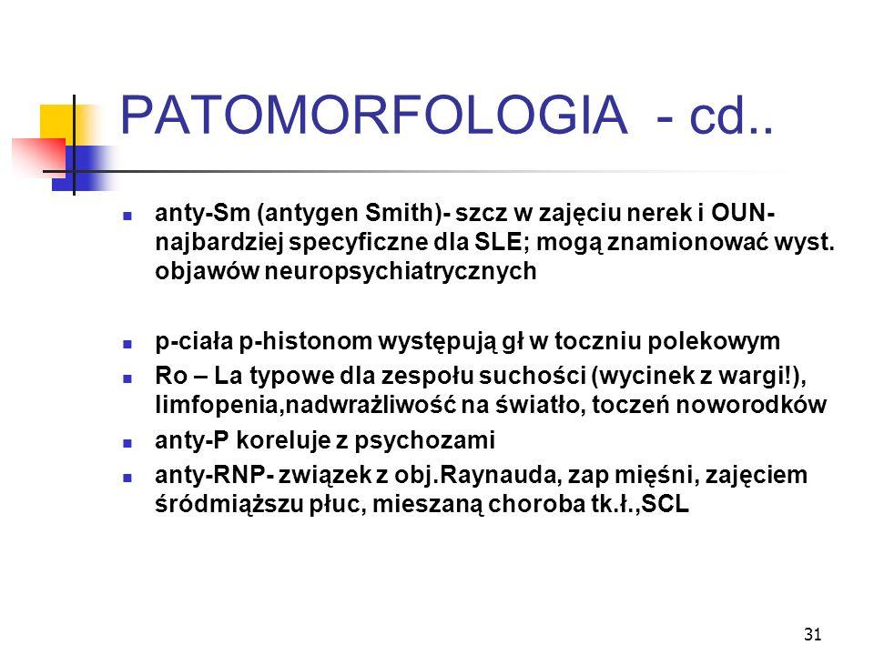 31 PATOMORFOLOGIA - cd.. anty-Sm (antygen Smith)- szcz w zajęciu nerek i OUN- najbardziej specyficzne dla SLE; mogą znamionować wyst. objawów neuropsy