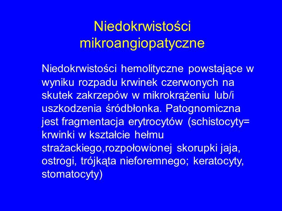 Niedokrwistości mikroangiopatyczne Niedokrwistości hemolityczne powstające w wyniku rozpadu krwinek czerwonych na skutek zakrzepów w mikrokrążeniu lub