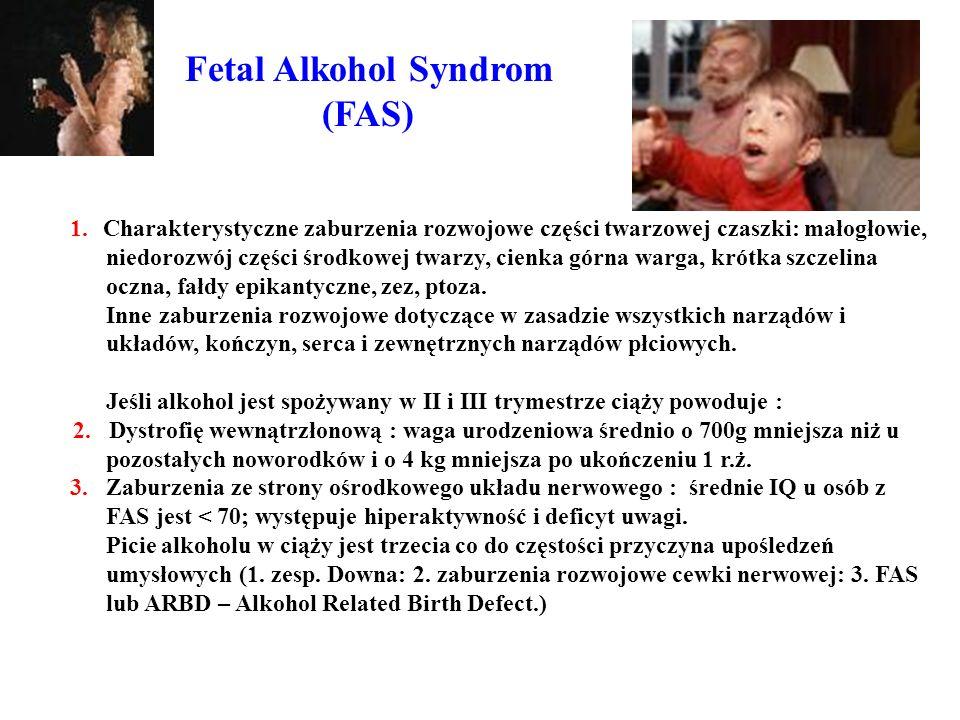 Fetal Alkohol Syndrom (FAS) 1. Charakterystyczne zaburzenia rozwojowe części twarzowej czaszki: małogłowie, niedorozwój części środkowej twarzy, cienk