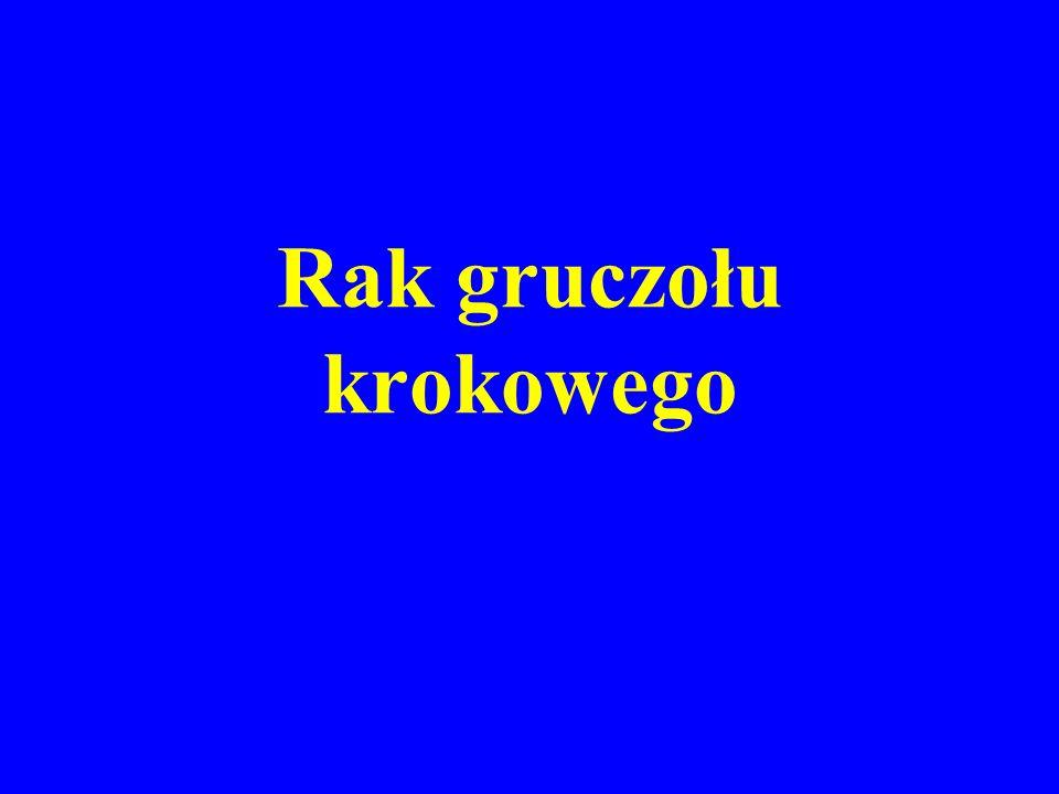 EPIDEMIOLOGIA RAKA PROSTATY Trzecie miejsce pod względem częstości występowania w Polsce Stały wzrost zachorowań Głównie 7 dekada życia, niezwykle rzadko < 50.