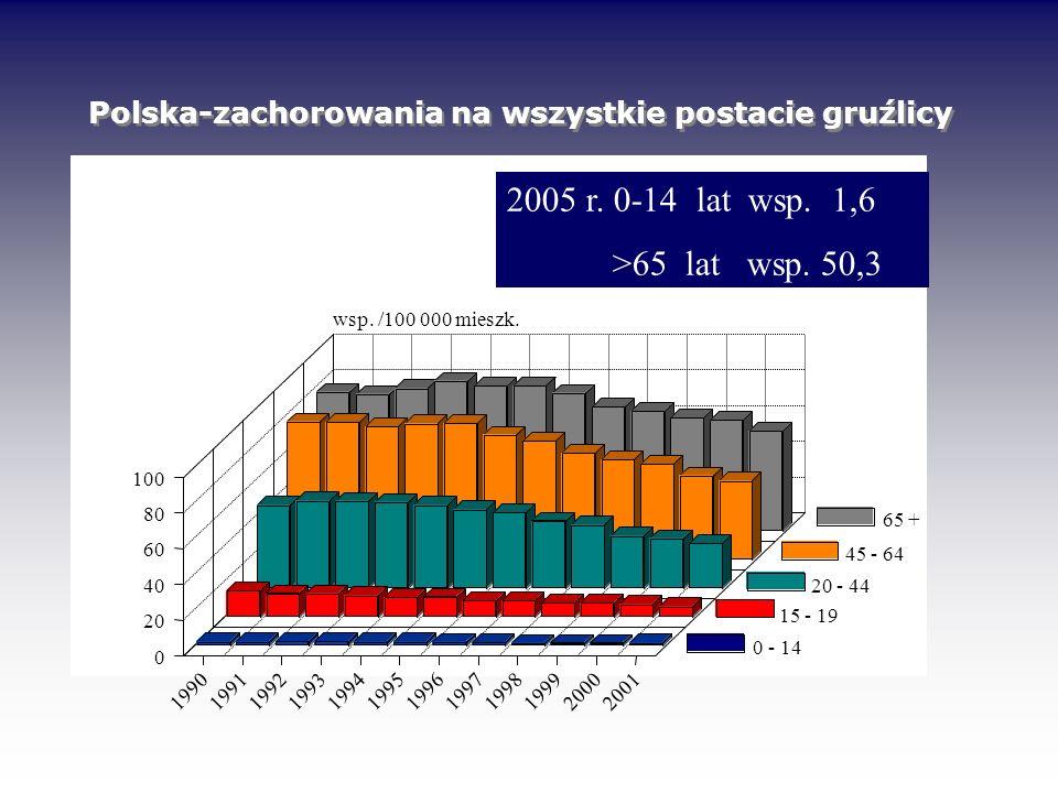 Polska-zachorowania na wszystkie postacie gruźlicy 199019911992199319941995199619971998199920002001 0 20 40 60 80 100 wsp. /100 000 mieszk. 0-14 15-19