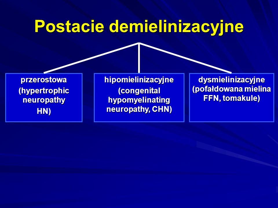 Postacie demielinizacyjne przerostowa (hypertrophic neuropathy HN)hipomielinizacyjne (congenital hypomyelinating neuropathy, CHN) dysmielinizacyjne (p