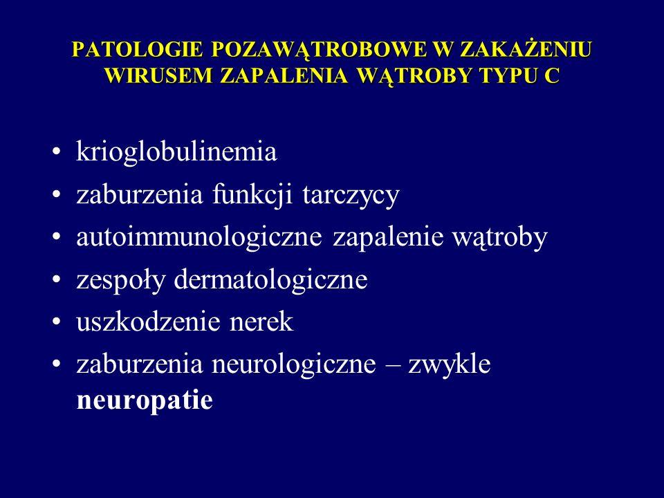 PATOLOGIE POZAWĄTROBOWE W ZAKAŻENIU WIRUSEM ZAPALENIA WĄTROBY TYPU C krioglobulinemia zaburzenia funkcji tarczycy autoimmunologiczne zapalenie wątroby
