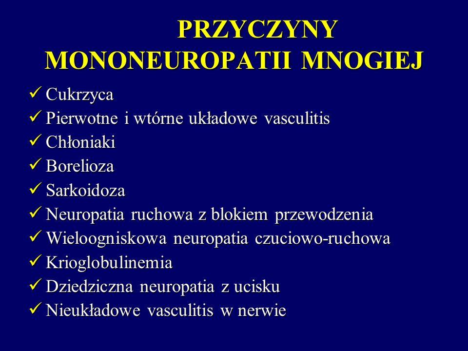 PRZYCZYNY MONONEUROPATII MNOGIEJ Cukrzyca Cukrzyca Pierwotne i wtórne układowe vasculitis Pierwotne i wtórne układowe vasculitis Chłoniaki Chłoniaki B