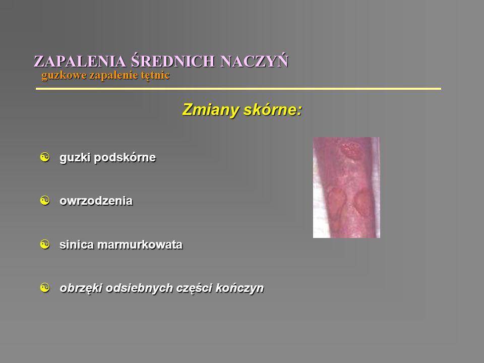 ZAPALENIA ŚREDNICH NACZYŃ  guzki podskórne  owrzodzenia  sinica marmurkowata  obrzęki odsiebnych części kończyn Zmiany skórne: guzkowe zapalenie t