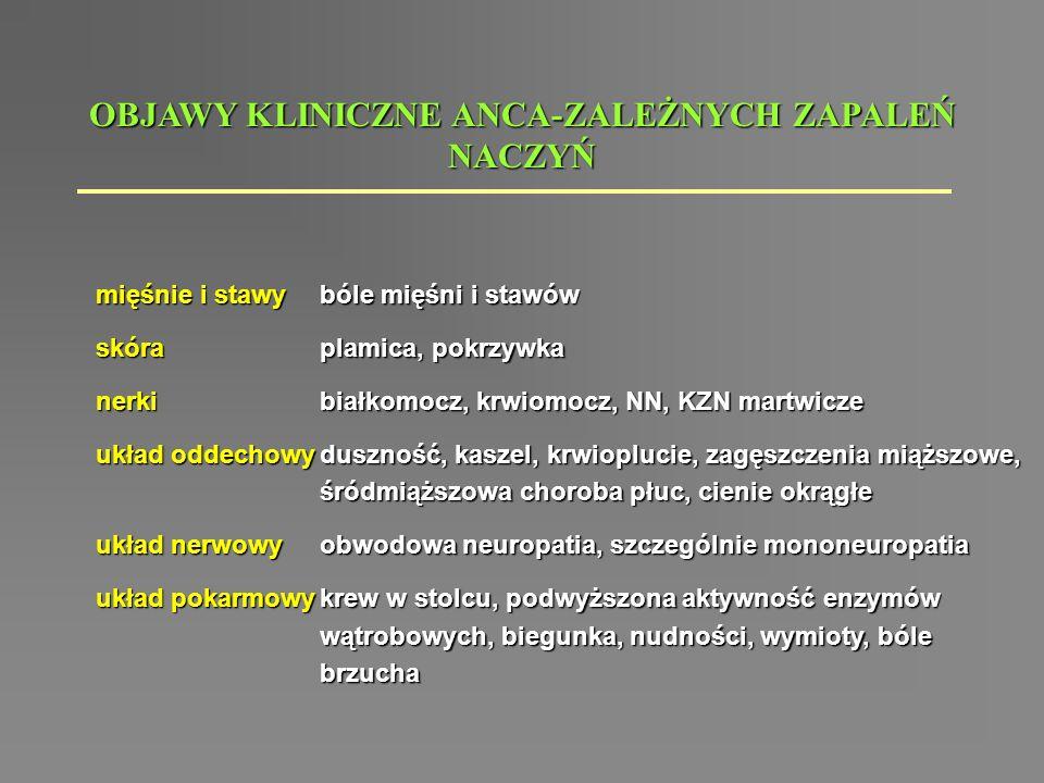 OBJAWY KLINICZNE ANCA-ZALEŻNYCH ZAPALEŃ NACZYŃ mięśnie i stawy skóranerki układ oddechowy układ nerwowy układ pokarmowy bóle mięśni i stawów plamica,